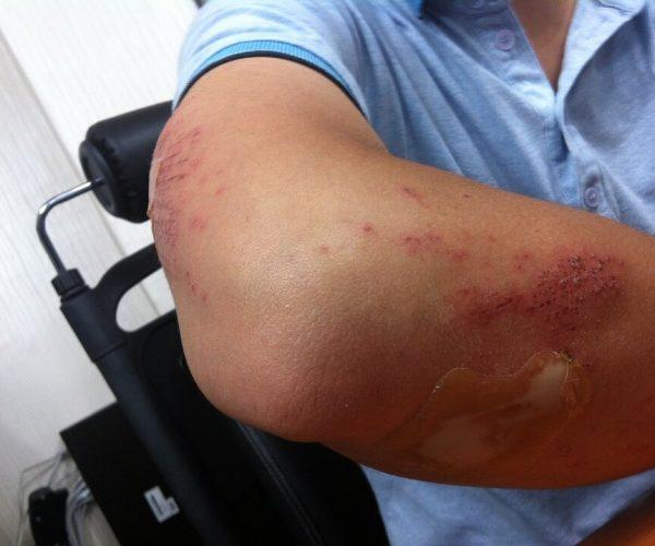 man with injured arm